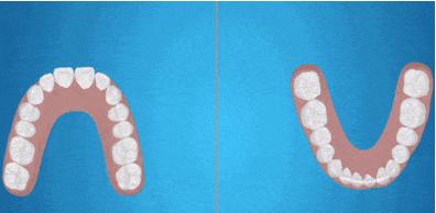 20岁牙齿矫正多少钱