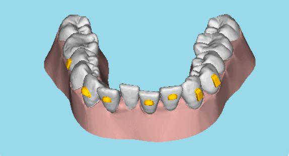牙齿矫正对牙齿伤害大吗
