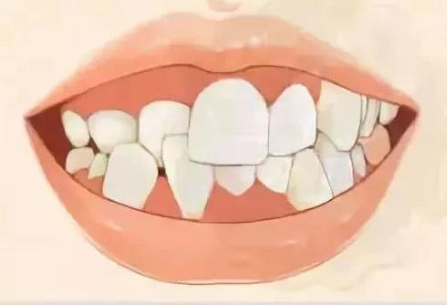 杭州格莱美口腔做成人极速反颌牙齿矫正