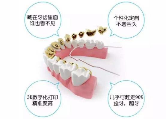 上海六院做舌侧隐形矫正的收费价格