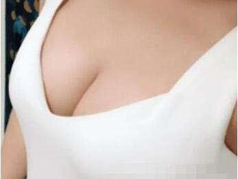 绵一的自体脂肪隆胸术后照