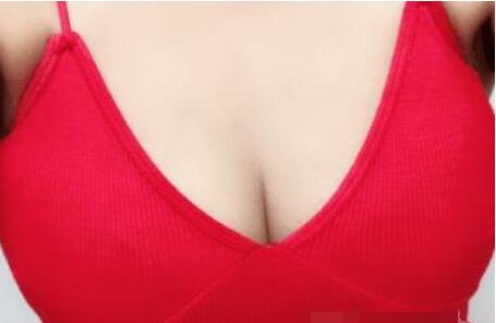 北京八大处郭鑫做的自体脂肪隆胸