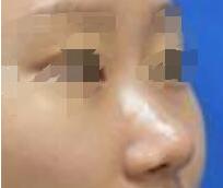 北京八大处医院俞楠泽做假体隆鼻