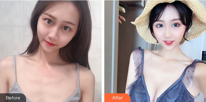 北京中日友好医院整形外科才杰隆胸案例