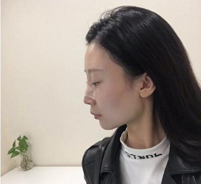 北京美莱王旭东鼻综合案例