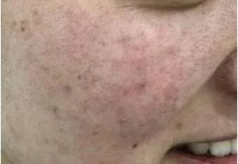 春丽的激光祛斑术前照