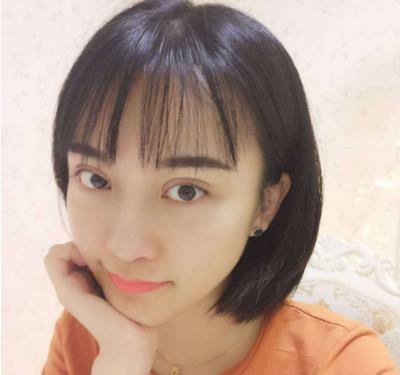 深圳美莱梁晓健做双眼皮修复