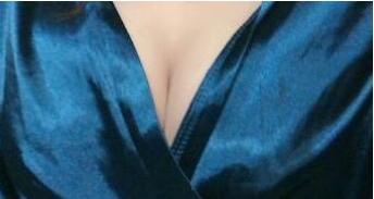 深圳非凡王天成乳房下垂矫正技术