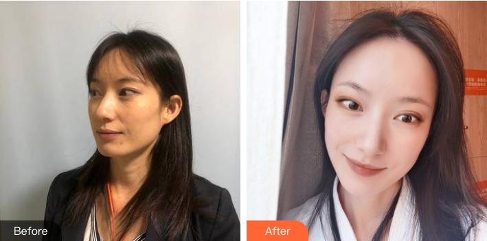 深圳希思医疗美容医院韦海传光子嫩肤