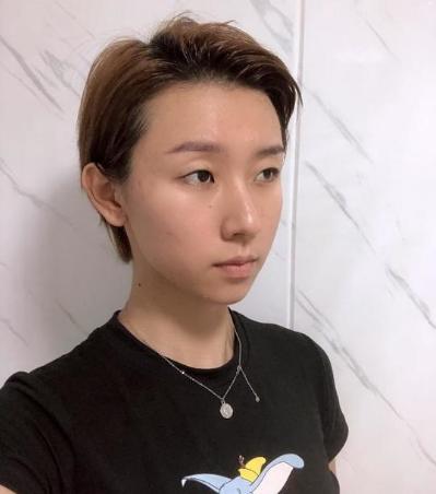 深圳希思医院李俊的双眼皮技术