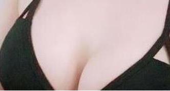 北医三院整形外科李比的隆胸技术
