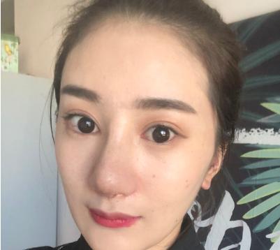 深圳阳光万晓楠做隆鼻手术