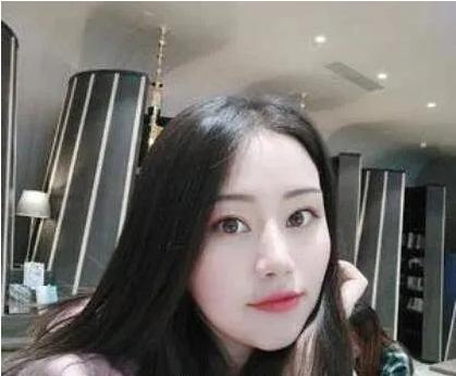 北京丽都医疗美容医院吴玉家双眼皮案例