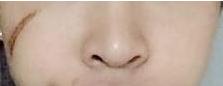 北京丽都于晓春的疤痕修复效果