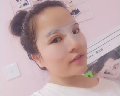 北京丽都医疗吴玉家眼部整形