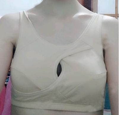 北京知音李奇军假体隆胸