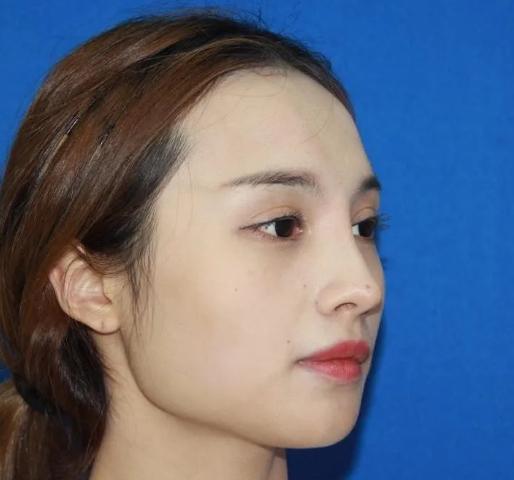 上海伊莱美好不好?上海伊莱美李湘原下颌角案例参考