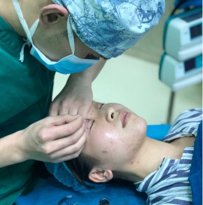 深圳博美王红玮医生做双眼皮