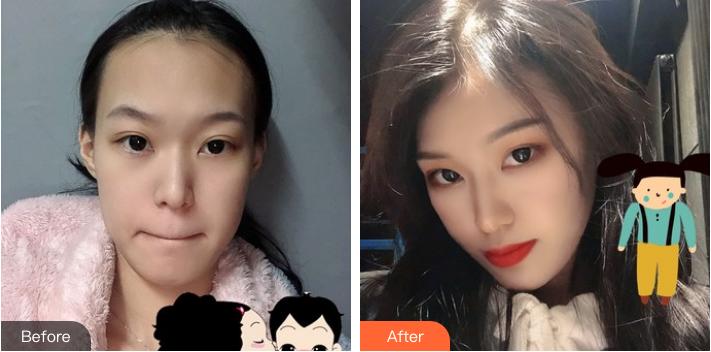 北京华韩医疗美容医院李勇发际线种植