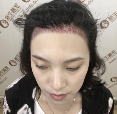北京华韩李勇医生的头发种植技术