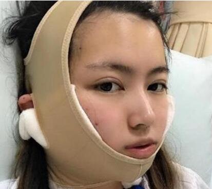 北京八大处解芳下颌角整形