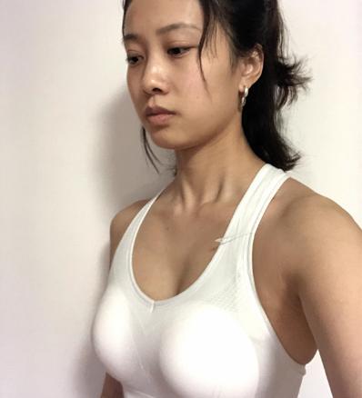 北京八大处李发成自体脂肪隆胸怎么样