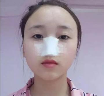 敏儿的假体隆鼻术前照