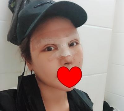 北京八大处王欢鼻修复案例