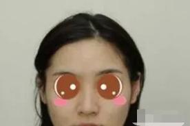 小仙女的自体肋软骨隆鼻术前照