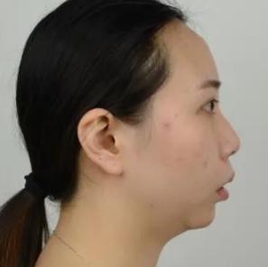 单丹子的下颌角颧骨双鄂手术术前照