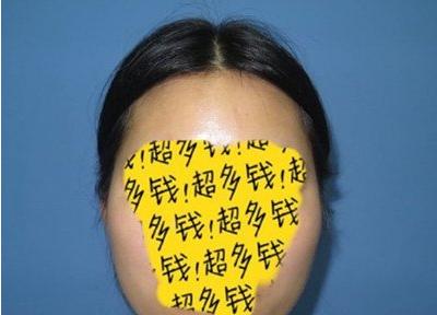 北京八大处张智勇颧骨内推+长曲线下颌角