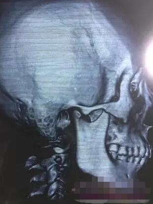 绵一的磨下颌角术前照