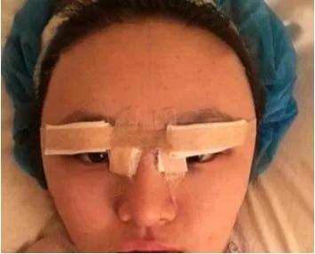 北京八大处双眼皮案例