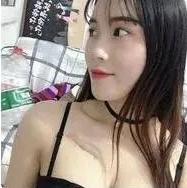 北京东方和谐张准自体脂肪隆胸