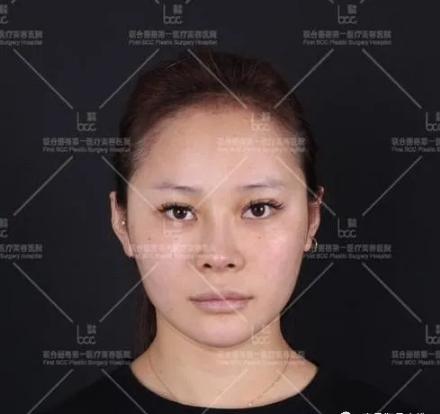 雪子的下颌角整形术前照