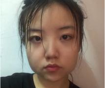 北京禾力康金尚训磨骨怎么样?需要多少钱?