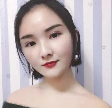 北京禾美嘉任学会自体脂肪面部填充