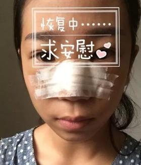 可可的假体隆鼻术前照
