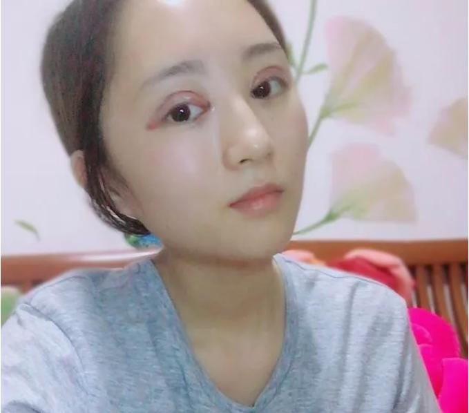 北京联合丽格吴焱秋全切双眼皮+开眼角案例