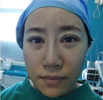北京联合丽格吴焱秋双眼皮修复案例