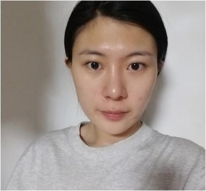 北京联合丽格吴焱秋医生做的全切双眼皮