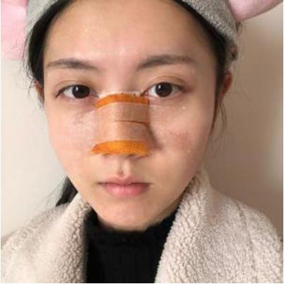 北京美莱王旭东肋软骨鼻综合案例