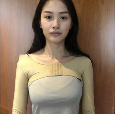 北京美莱宋延刚吸脂案例