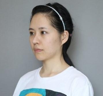 北京米扬丽格夏正义隆鼻怎么样
