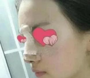 静子的假体隆鼻术前照