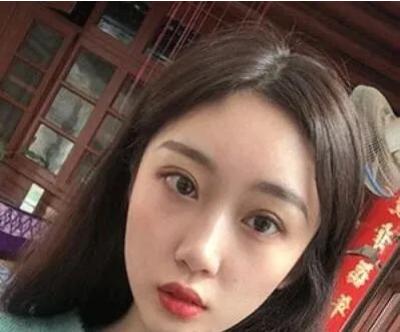北京彤美刘风卓修复双眼皮怎么样