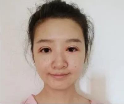 北京彤美刘风卓做双眼皮技术好吗
