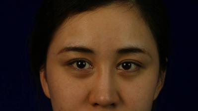 北京沃尔汪洋做鼻子好吗