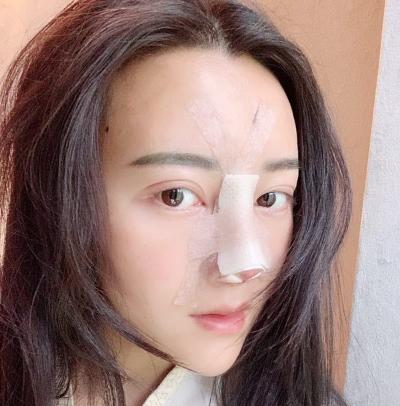 北京薛志强做鼻修复怎么样