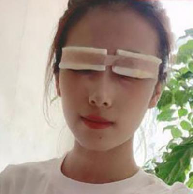 北京延世金奇龙割双眼皮怎么样